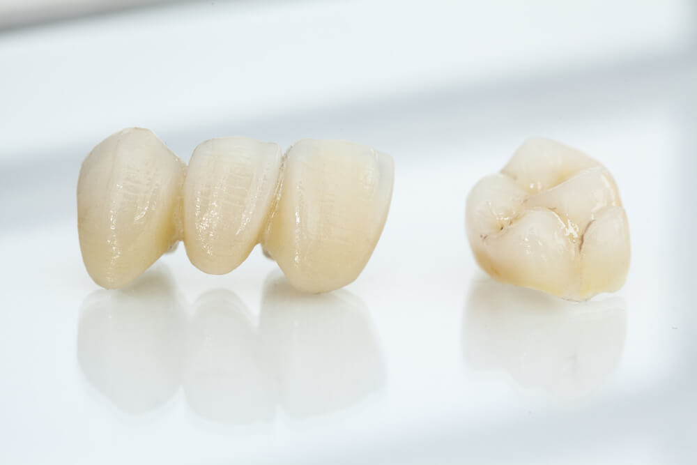 Various Uses For A Dental Crowns