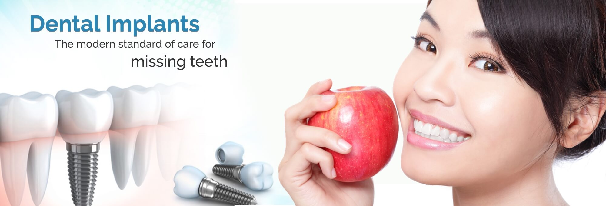 Dental Implants in Chino CA