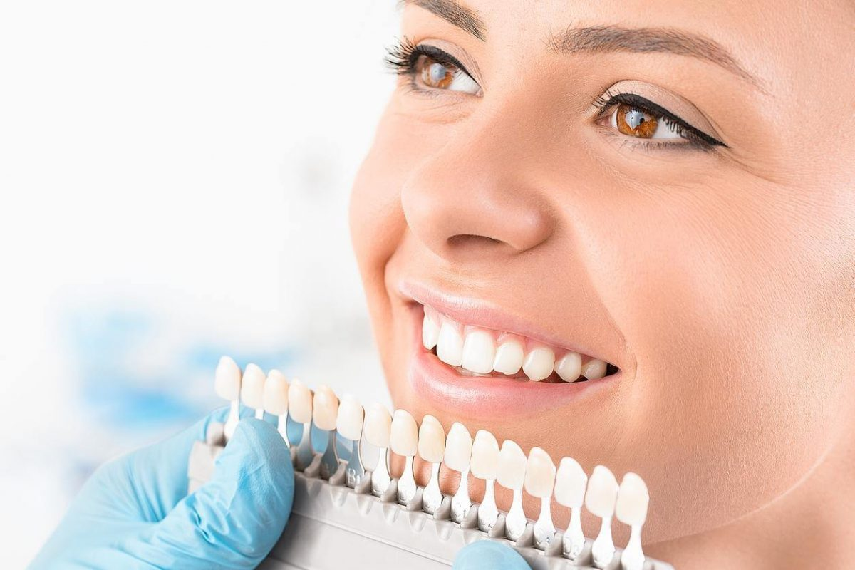 Veneers vs Crowns: What's the Difference and What Do You Need?