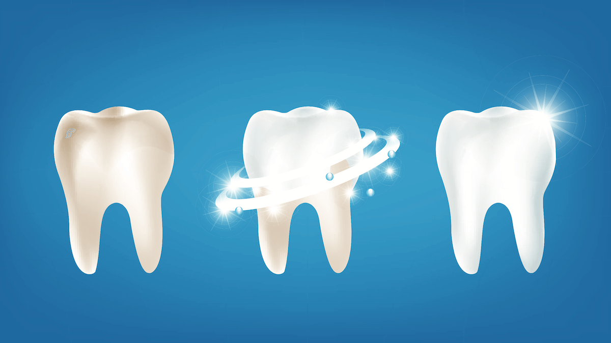 The Best Teeth Whitening Methods Your Dentist Offers