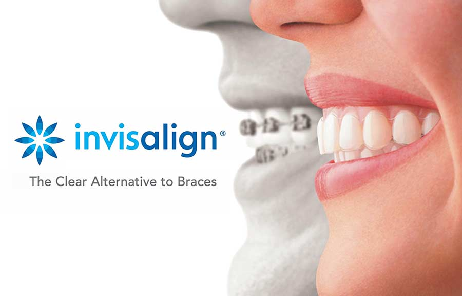 Invisalign Teen: 5 Things Parents Need to Know
