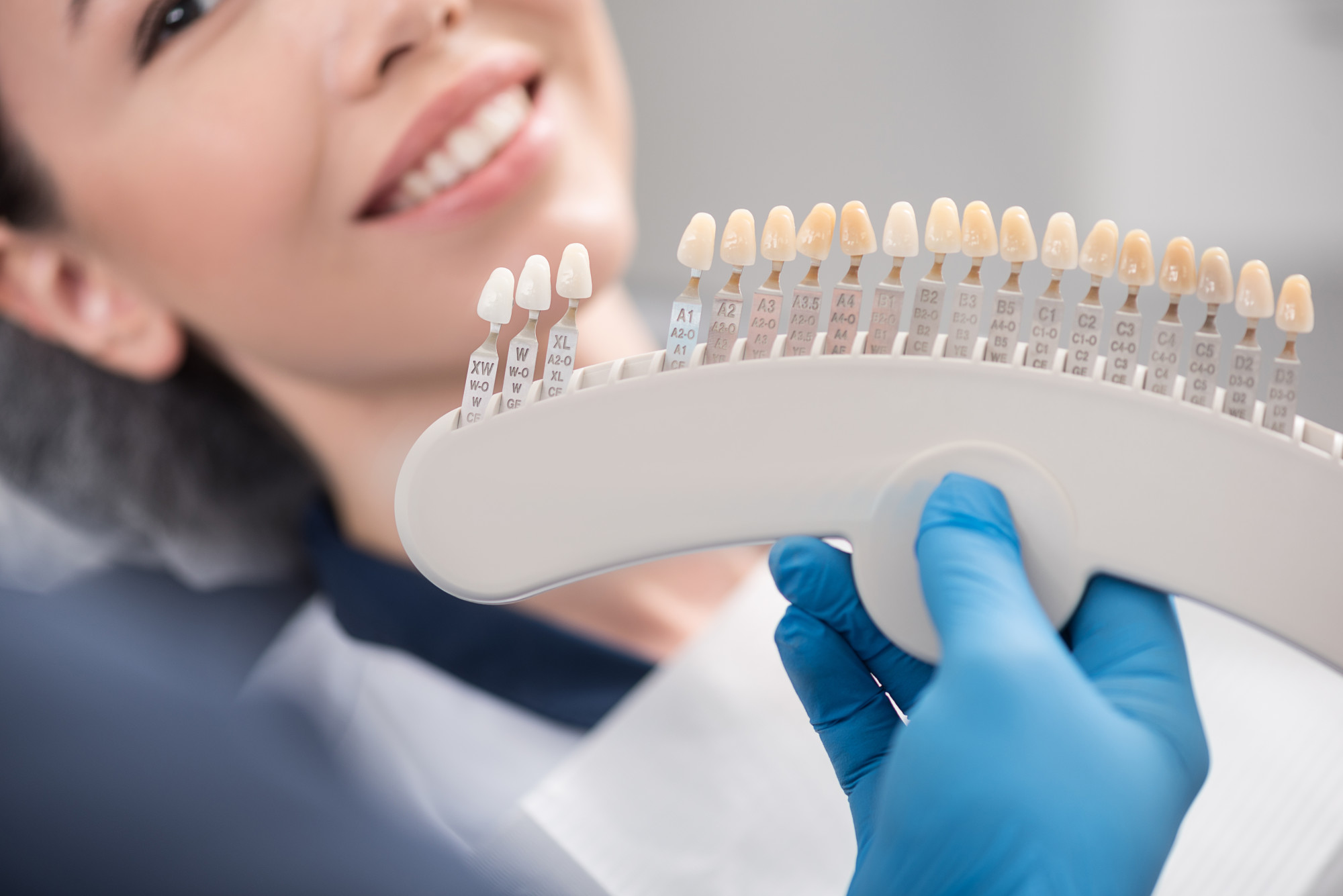 Are Veneers Worth It? 4 Things You Should Know Before Getting