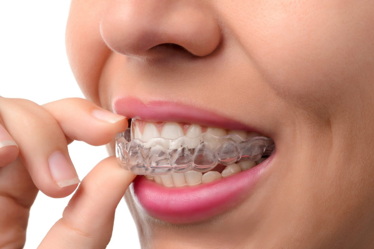 Invisalign Pros and Cons for Adults: What You Need to Consider