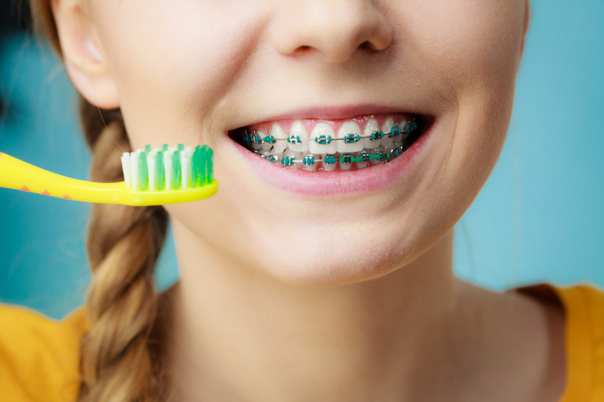 How to Keep Your Braces Clean: This is Everything You Need to Do